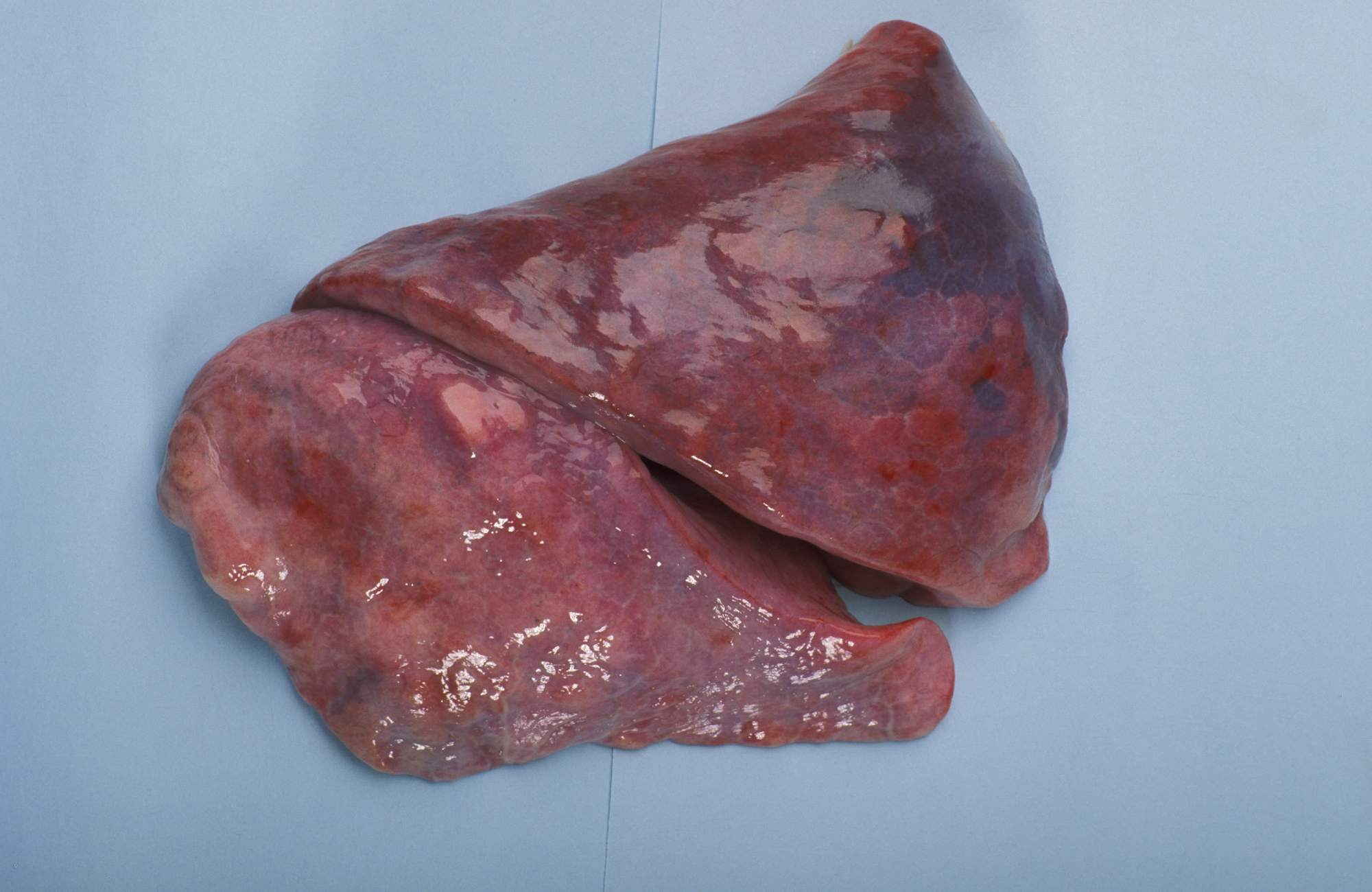 Images of How COPD Looks Inside of Lungs