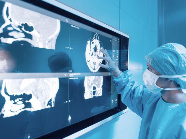 Surgeon looking at MRI scans.
