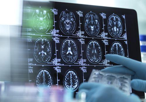 Scientist looking at brain scans