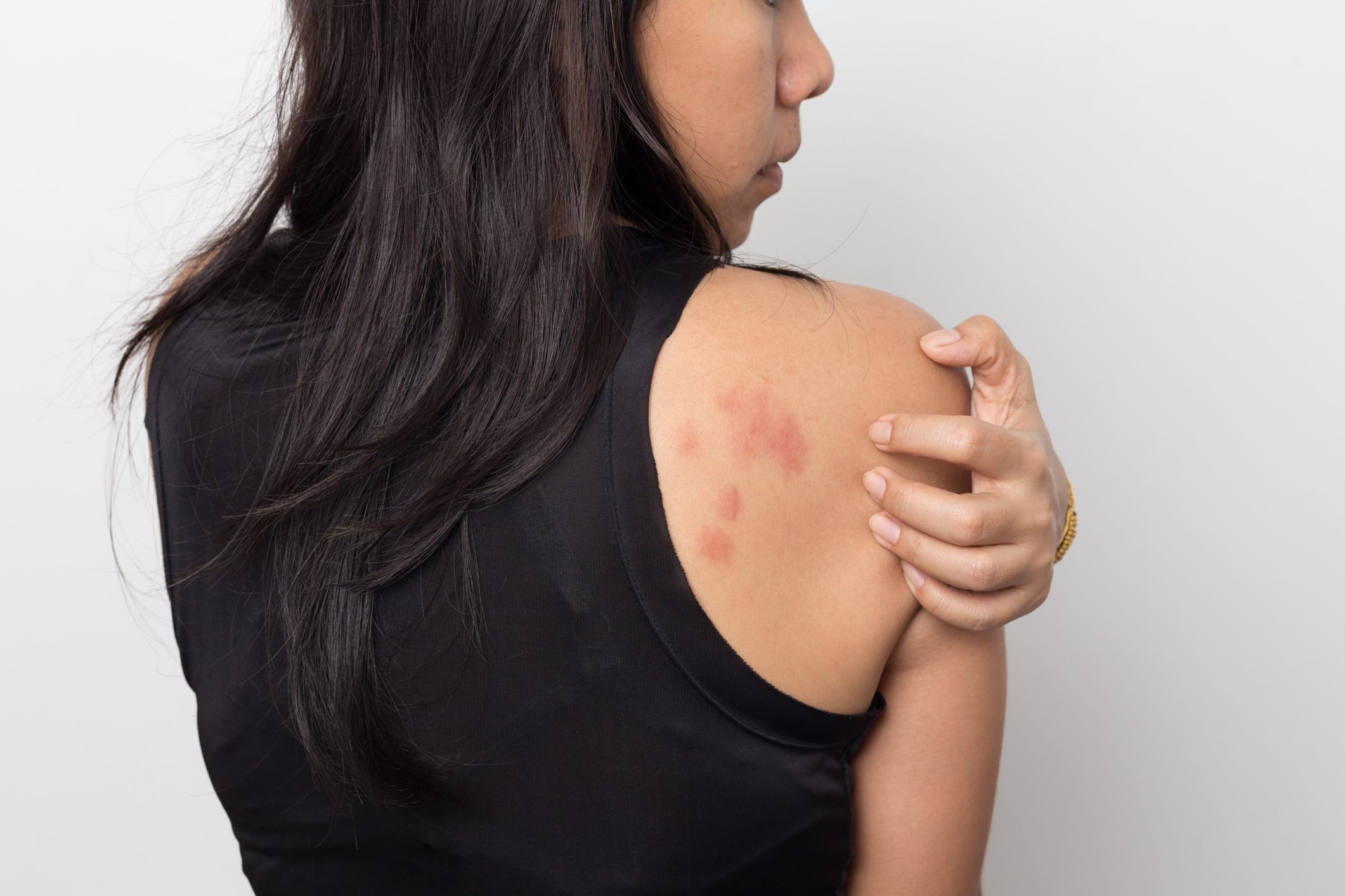 Could Anxiety Be Giving You Hives?