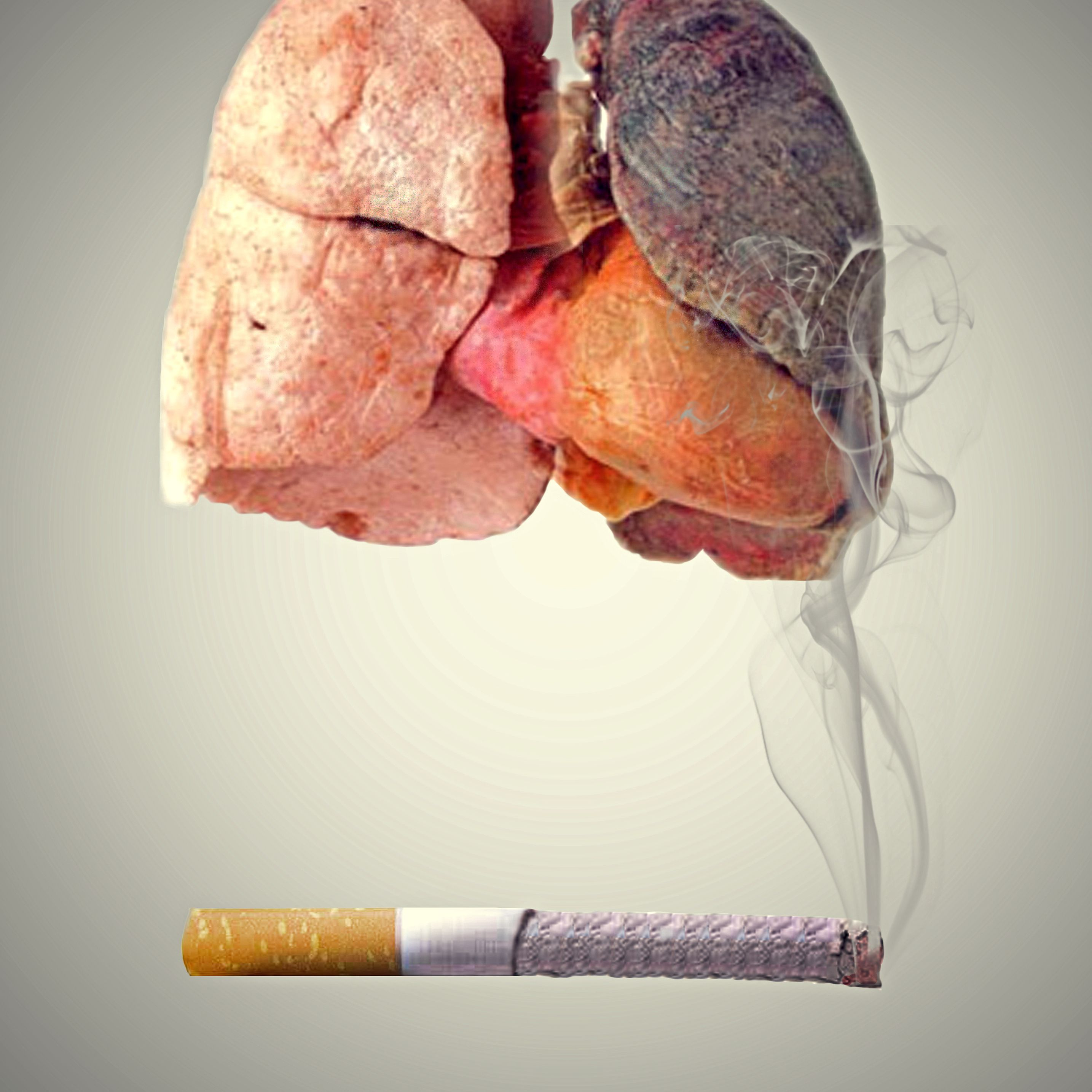 Smoker's Lungs vs  Normal Healthy Lungs