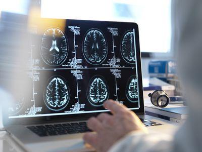 Human brain MRI