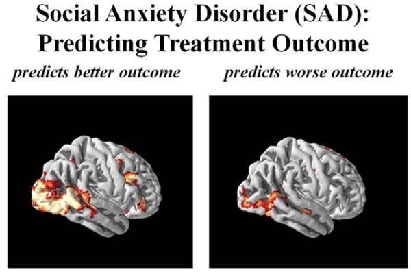 Brains of patients with social anxiety disorder.