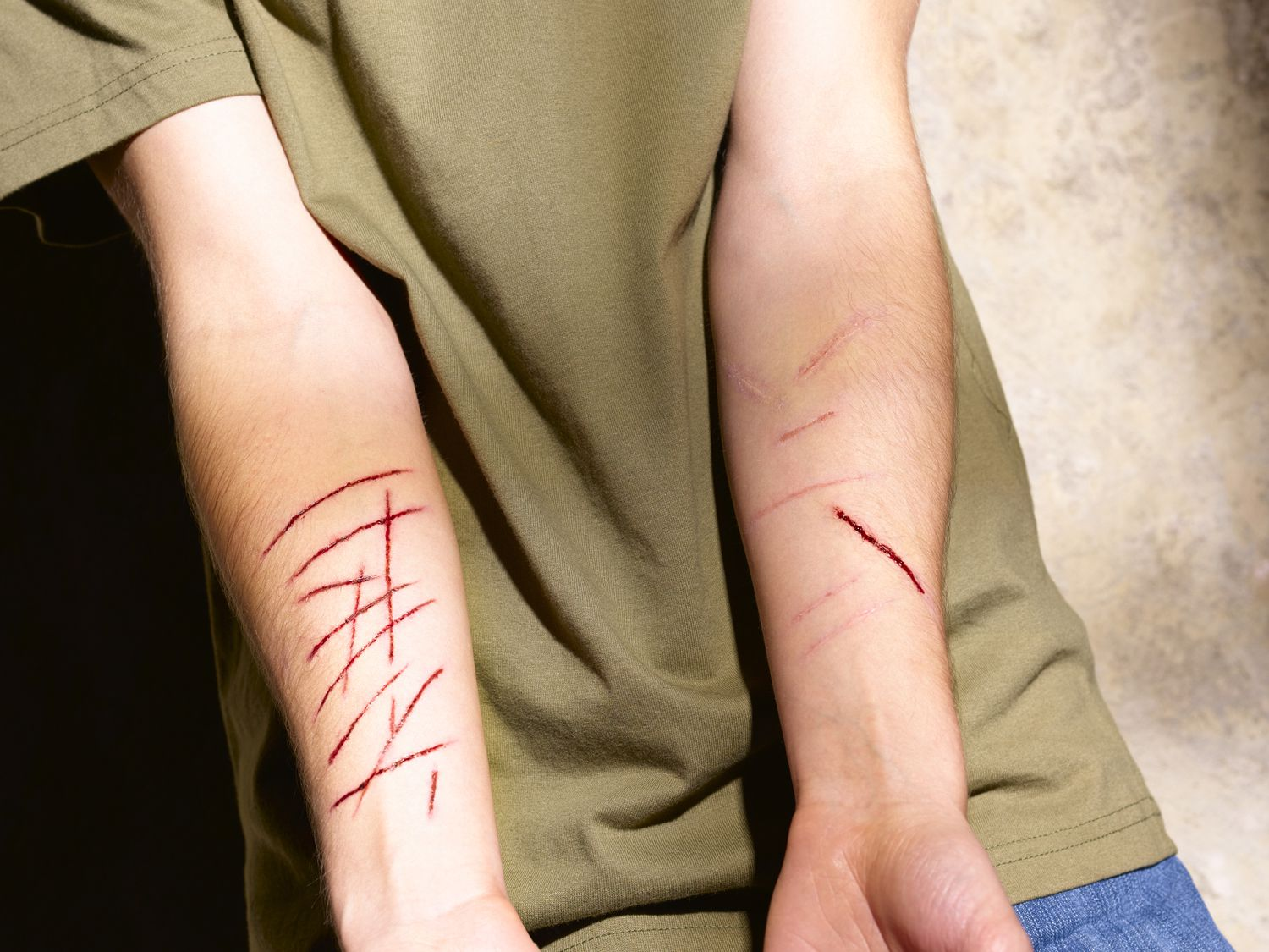 Forms of Self-Harm Common in People With PTSD