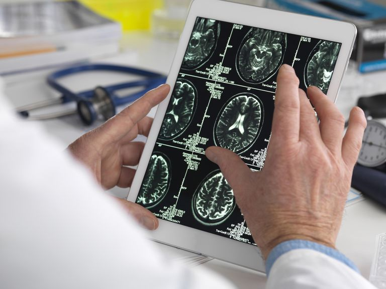 A doctor looking at a brain scan on an ipad