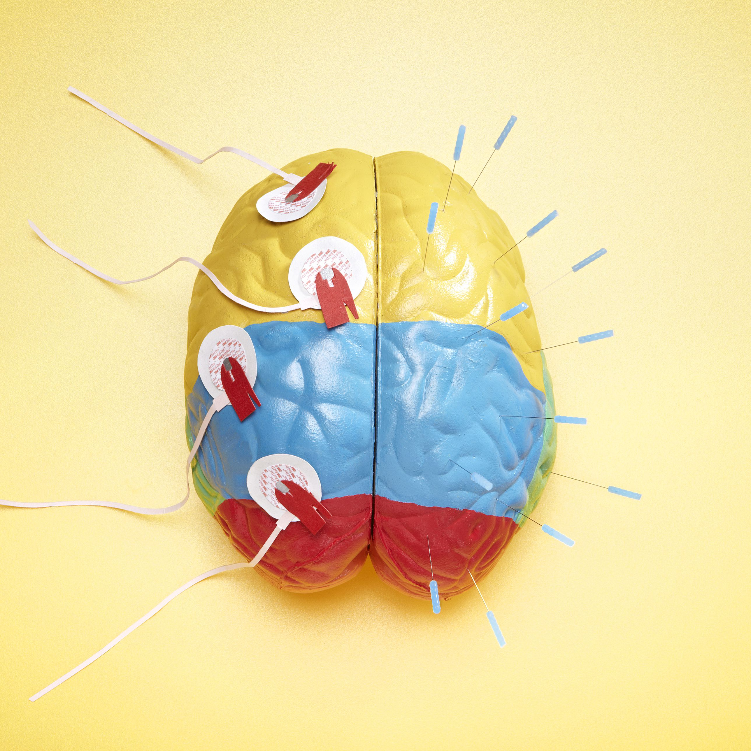 A Guide to the Anatomy of the Brain