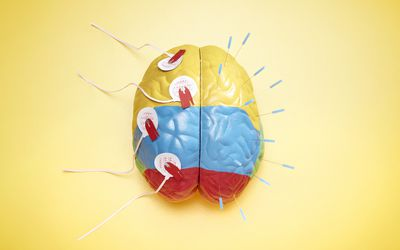 Electrodes and needles attached to brain