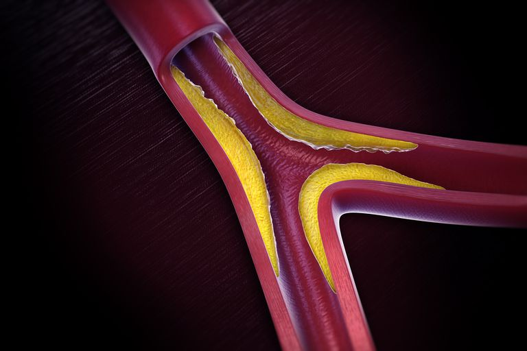 illustration of hardening of an artery
