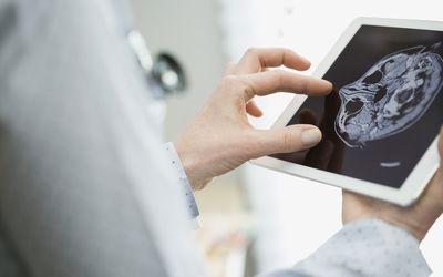 Female doctor examining brain scan on digital tablet