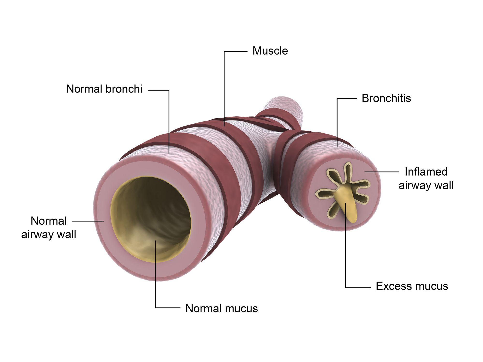 Medical illustration of bronchitis