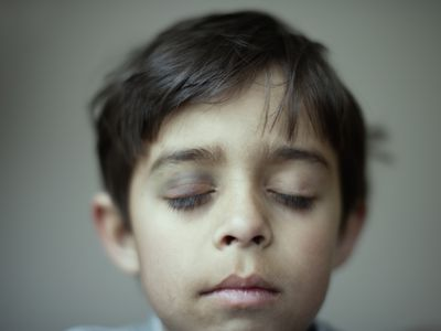 a young boy with black eye