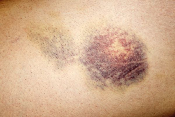 Close up of bruised skin on human leg