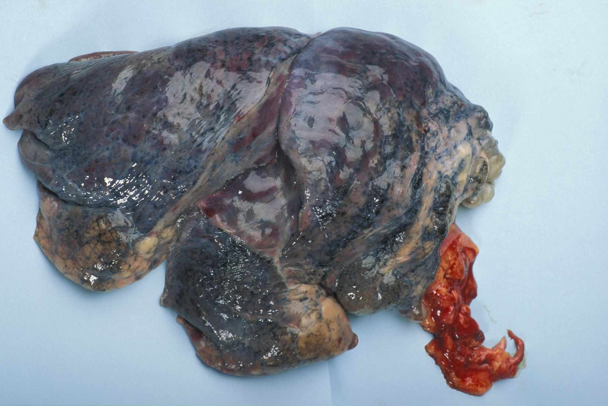 human lung with emphysema