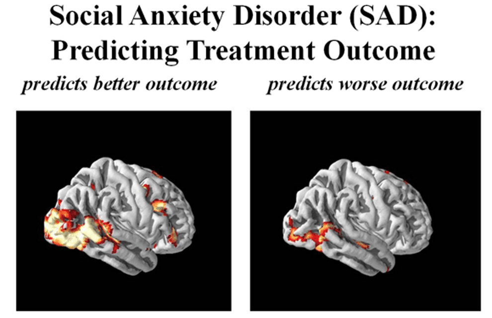5 Things Brain Imaging Studies Tell Us About Social Anxiety Disorder