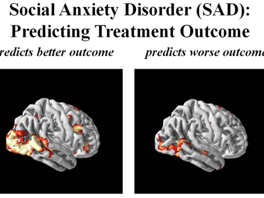 The Biology Of Anxious Temperament May >> Brain Imaging Helps Explain Social Anxiety Disorder