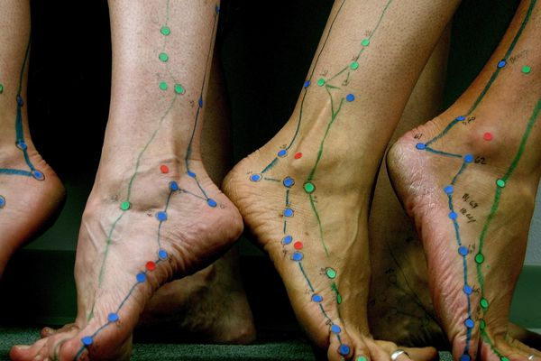 Acupuncture points on feet.