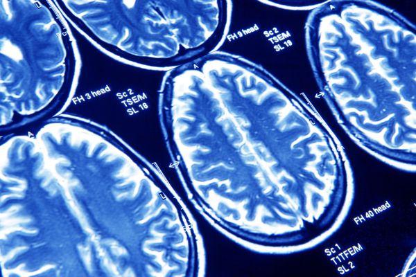Brain scans, MRI scans