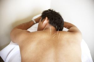 Acupuncture on man's back