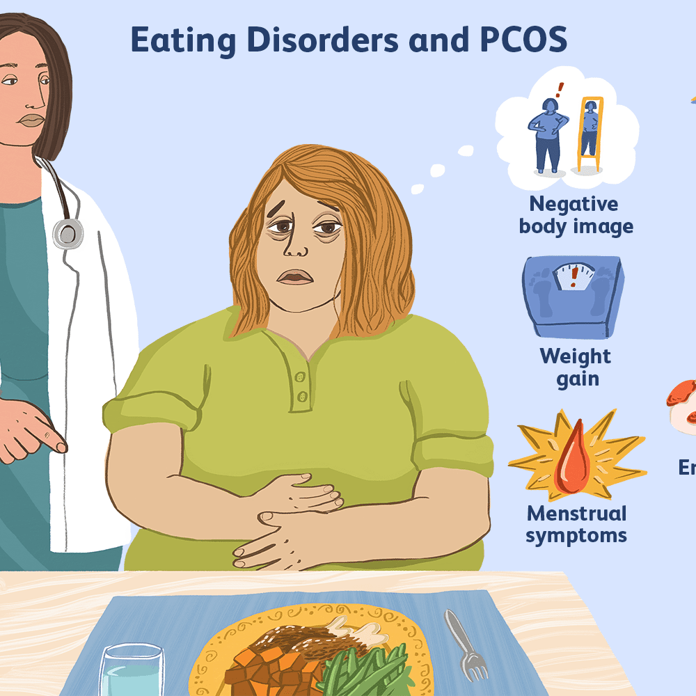 Eating Disorders and PCOS