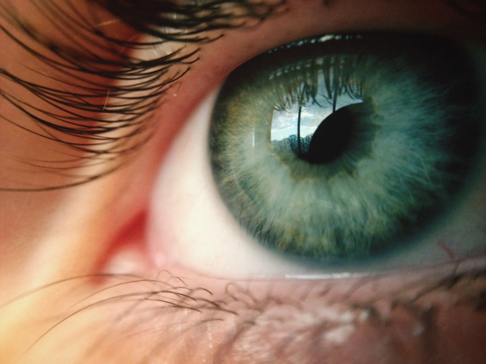 Reasons Why You May Have a Blind Spot in Your Eye