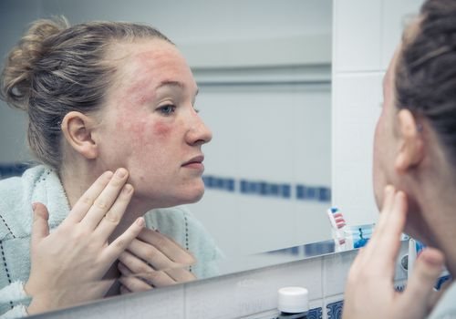 Woman with allergic reaction looking herself in the mirror